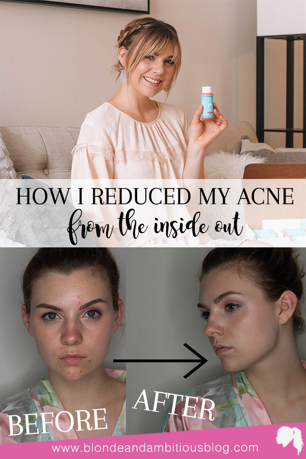 How I Reduced My Acne From The Inside Out