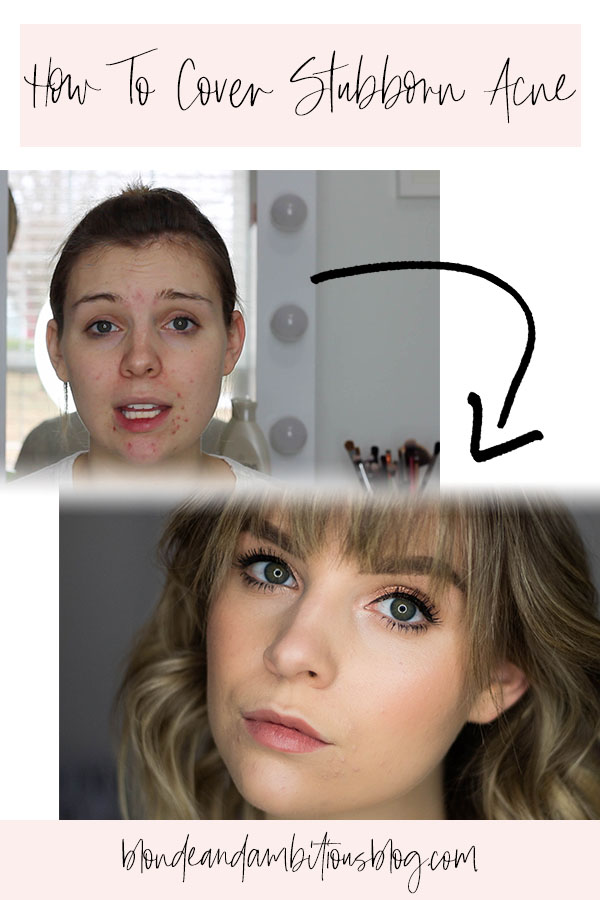 How To Cover Stubborn Acne VIDEO TUTORIAL